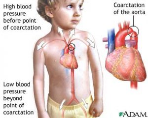 باریک شدن یا انسداد موضعی آئورت در کودک یا کوارکتاسیون آئورت