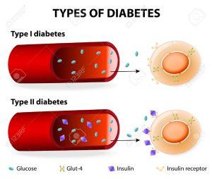 دیابت غیر وابسته به انسولین در کودکان (1)