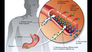 بچه هایی که تازه تشخیص دیابت نوع 2 دارند به تزریق انسولین نیاز ندارند، زیرا پانکراس هنوز مقداری انسولین تو