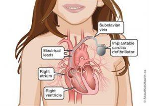 نارسایی احتقانی قلبی کودک درمان تشخیص (1)